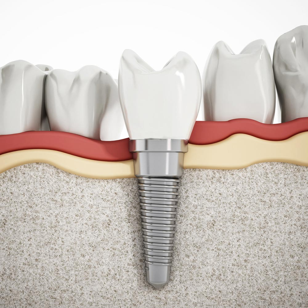 illustration of implant treatment
